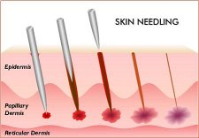 Stichtiefe der Nadeln